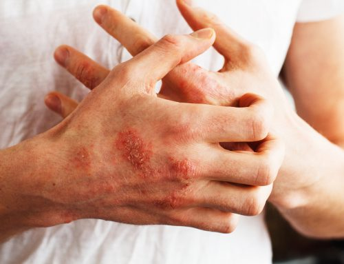 The Eczema-Histamine Connection