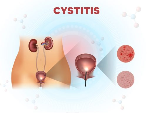 Interstitial Cystitis and the Histamine Connection